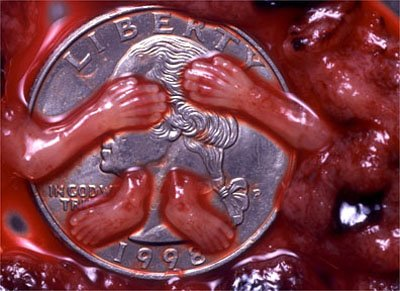 Abortion Pictures 32